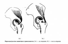 Асептический некроз сустава 119