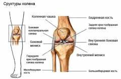 Блокада коленного сустава при разрыве мениска 111