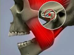 Боль сустава возле уха 177