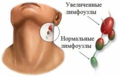 Боль сустава возле уха 64