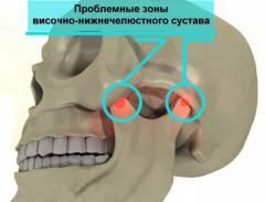 Боль сустава возле уха 111