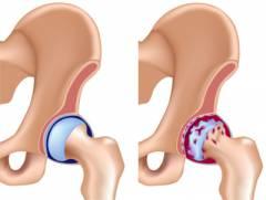 Боль в области тазобедренного сустава слева 172
