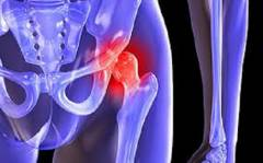 Боль в области тазобедренного сустава слева 6