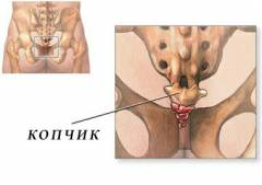 Боли тазобедренного сустава копчик 164