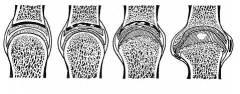 Фк голеностопного сустава 187