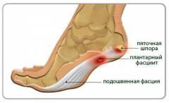 Хламидийный артрит коленного сустава симптомы и лечение 56