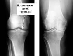 Хламидийный артрит коленного сустава симптомы и лечение 124