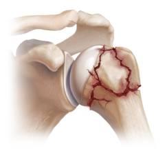 Какие суставы фиксируются при переломе плеча? 22