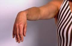 Какие суставы фиксируются при переломе плеча? 17