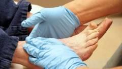 Какой врач лечит артроз голеностопного сустава? 192