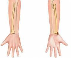 Краевой перелом локтевого сустава 37
