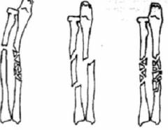 Краевой перелом локтевого сустава 114