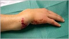 Краевой перелом локтевого сустава 60