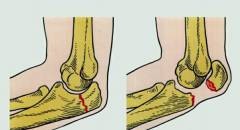 Краевой перелом локтевого сустава 15