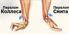 Краевой перелом локтевого сустава 47