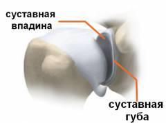 Лечебно диагностическая артроскопия коленного сустава 64