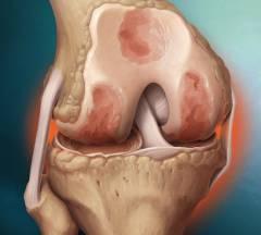 Лечебно диагностическая артроскопия коленного сустава 66