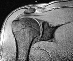 Лечение артроза плечевого сустава гимнастика 167
