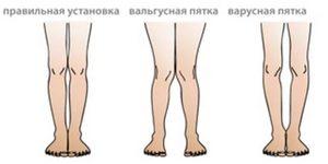 Лечение суставов у спортсменов 7