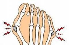 Нарост на суставе большого пальца ноги 170