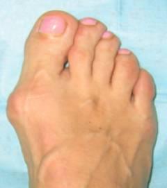 Нарост на суставе большого пальца ноги 157
