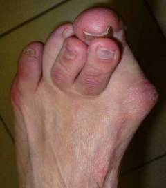 Нарост на суставе большого пальца ноги 125
