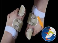 Нарост на суставе большого пальца ноги 33
