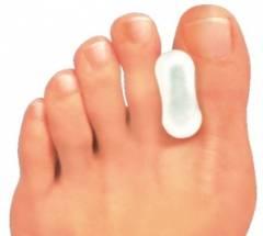 Нарост на суставе большого пальца ноги 18