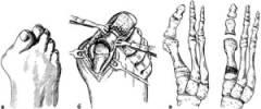 Нарост на суставе большого пальца ноги 151