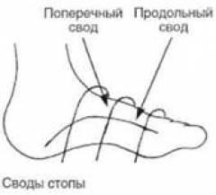 Нарост на суставе большого пальца ноги 156
