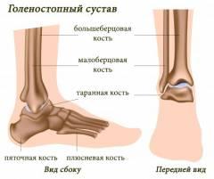 Осложнения после травмы голеностопного сустава 191