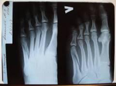 Осложнения после травмы голеностопного сустава 172