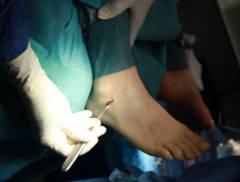 Осложнения после травмы голеностопного сустава 190