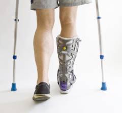 Осложнения после травмы голеностопного сустава 99
