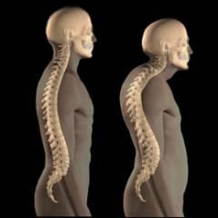 Остеопороз мелких суставов кистей рук 31