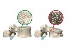 Остеопороз мелких суставов кистей рук 143
