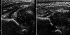 Озокерит на тазобедренные суставы ребенку 182