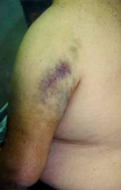 Перелом сустава плеча 136