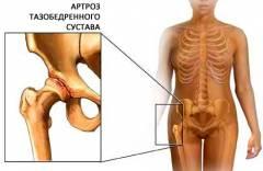 Первичный коксартроз тазобедренного сустава 81