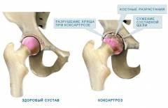 Первичный коксартроз тазобедренного сустава 34