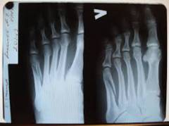 Повреждения голени голеностопного сустава и стопы 16