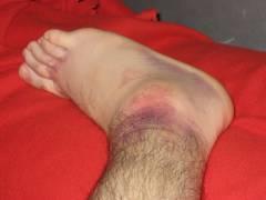 Повреждения голени голеностопного сустава и стопы 101