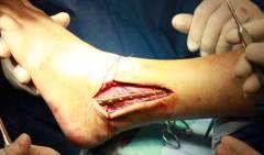 Повреждения голени голеностопного сустава и стопы 111