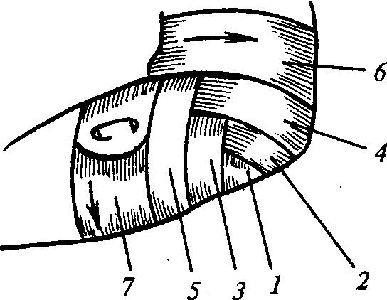 Повязка при травме локтевого сустава 119