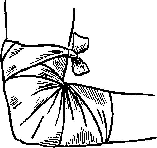 Повязка при травме локтевого сустава 133
