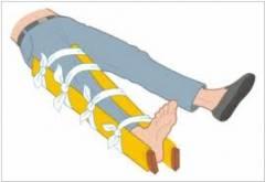 Признаки подвывиха тазобедренного сустава 56