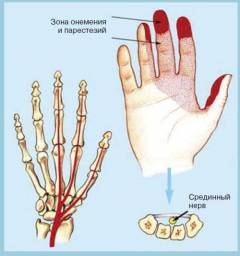Синдром запястного сустава лечение 104