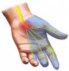 Синдром запястного сустава лечение 4