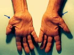 Синдром запястного сустава лечение 194