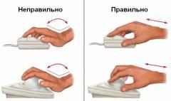 Синдром запястного сустава лечение 20